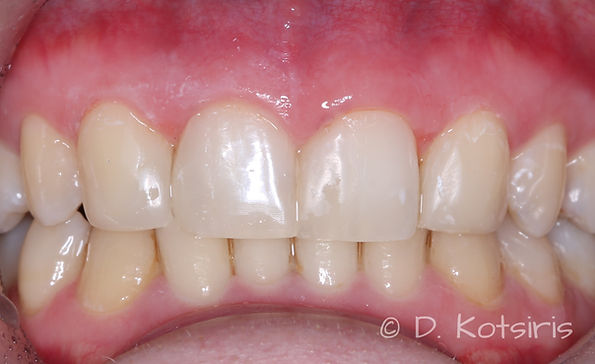 όψει ρηίνης κλείσιμο διαστημάτων κενών Κοτσίρης Δημήτρης οδοντίατρς χολαργός