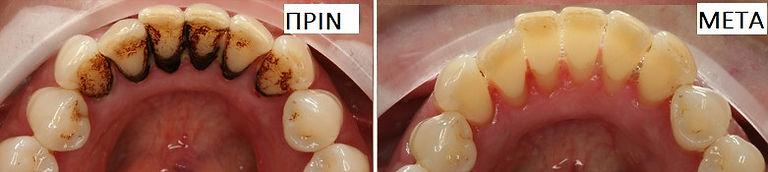 οδοντικος καθαρισμός πριν και μετα.jpg