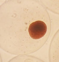 DTZ%20staining%20after%20encapsulation_e