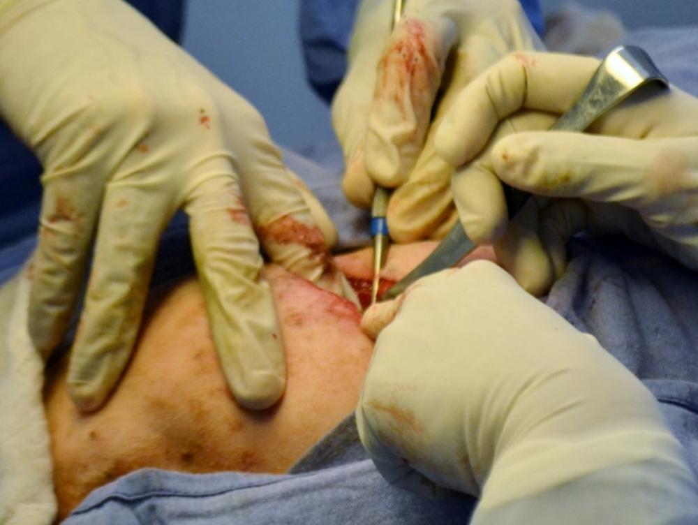 Denervación de la articulación coxof
