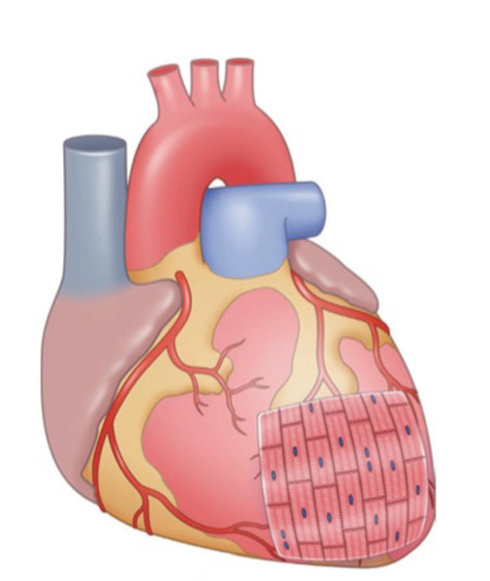 Células madre en el sistema cardiova
