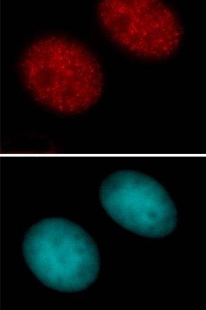 Histone H3K27ac antibody (pAb)