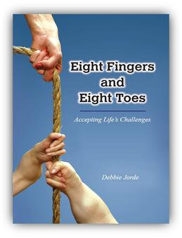 EIGHT FINGERS AND EIGHT TOES: ACCEPTING LIFE'S CHALLENGES, by Debbie Jorde.