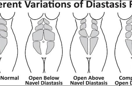 Part 1 of 3: Diastasis Recti: What is it?