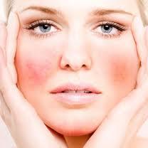 Beauty Routine scorretta e la pelle sensibile e reattiva