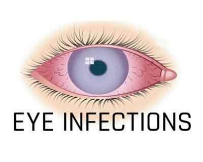 An inflamed eye