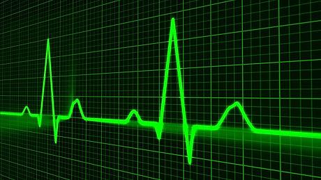 heart-cardiogram.jpg