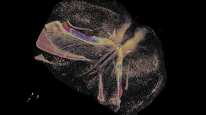 Whole mouse brain cleared with PEGASOS is imaged on a cleared tiling lightsheet microscope by 3i, Inc. Image is 4160 x 4544 x 1083 pixels in size and rendered in pseudocolor with Aivia. (Image courtesy: Hu Zhao, Texas A&M University; 3i, Inc., Denver CO)