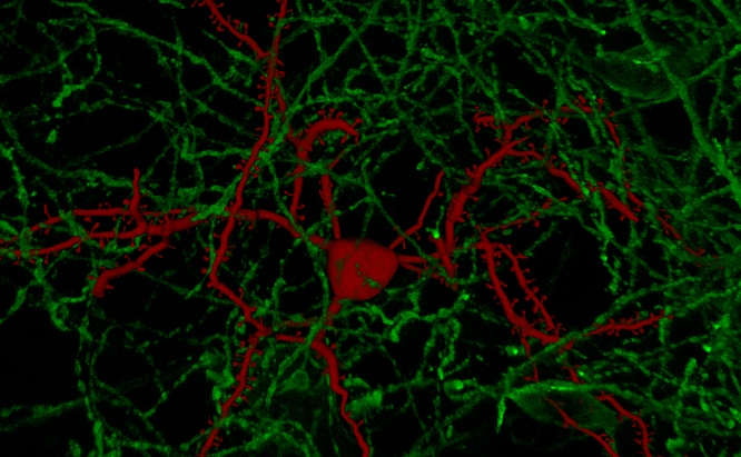 Neuron Tracing with Spine Analysis