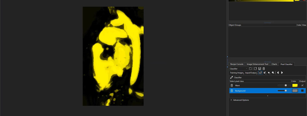 Heart reconstruction from MRI images