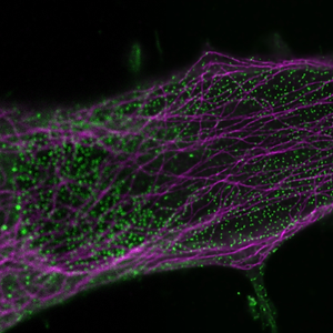 NIH_Combs_confocal2sted_combined.png