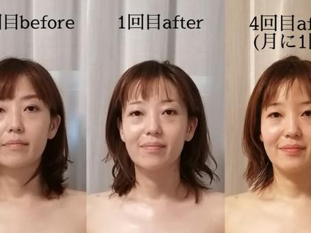 月に1回の小顔矯正、4ヶ月でこんなに変わります!
