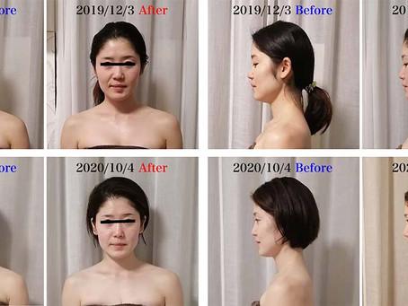 約1年の小顔骨格矯正の経過写真