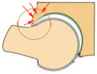conflit de hanche effet tenaille