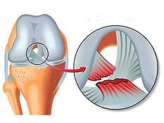 Rupture ligament croisé antérieur