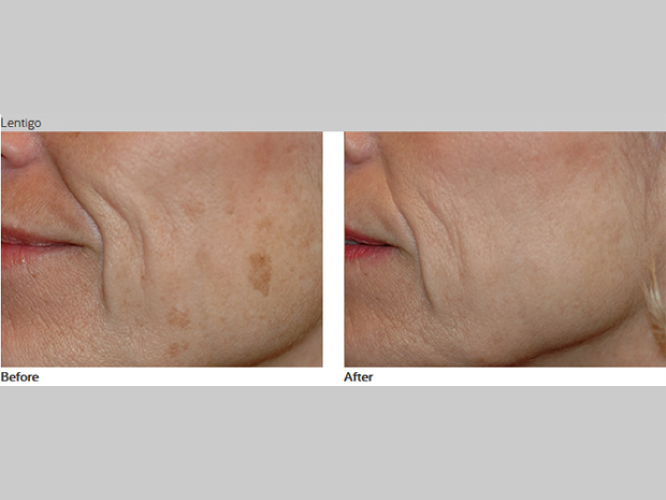 Skin-Care-Pastelle-Laser-Melasma-Pigmentation-Express-Envy-Laser-Genenesis-7