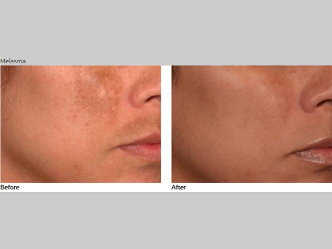 Skin-Care-Pastelle-Laser-Melasma-Pigmentation-Express-Envy-Laser-Genenesis-2