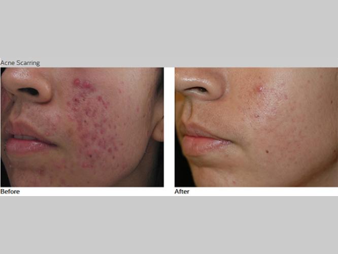 Skin-Care-Pastelle-Laser-Melasma-Pigmentation-Express-Envy-Laser-Genenesis-9
