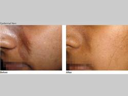 Skin-Care-Pastelle-Laser-Melasma-Pigmentation-Express-Envy-Laser-Genenesis-8