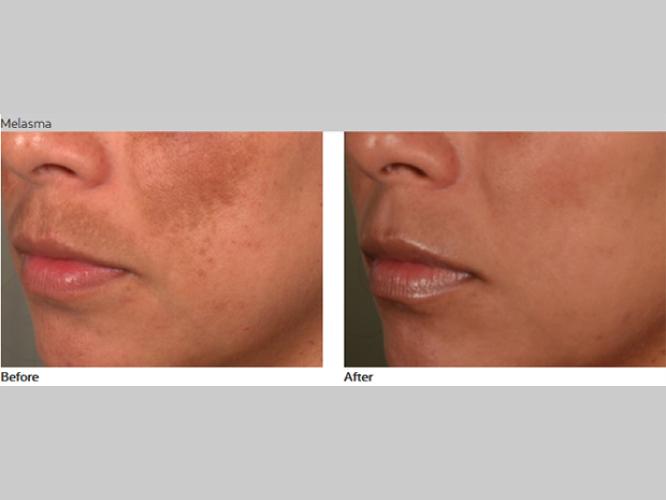 Skin-Care-Pastelle-Laser-Melasma-Pigmentation-Express-Envy-Laser-Genenesis-1