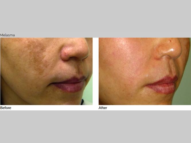 Skin-Care-Pastelle-Laser-Melasma-Pigmentation-Express-Envy-Laser-Genenesis-3