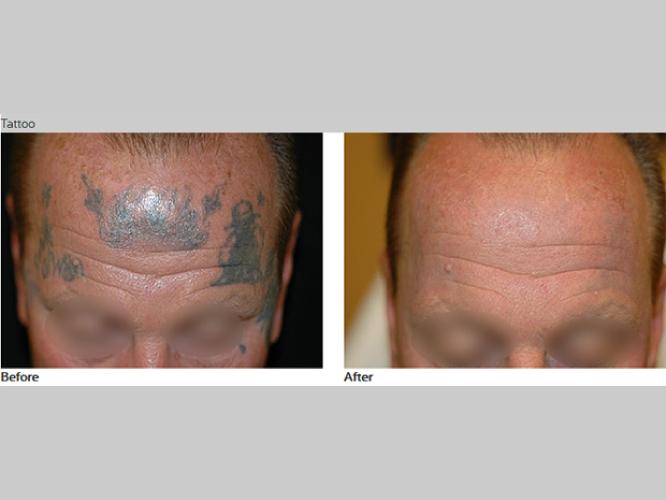 Skin-Care-Pastelle-Laser-Melasma-Pigmentation-Express-Envy-Laser-Genenesis-6