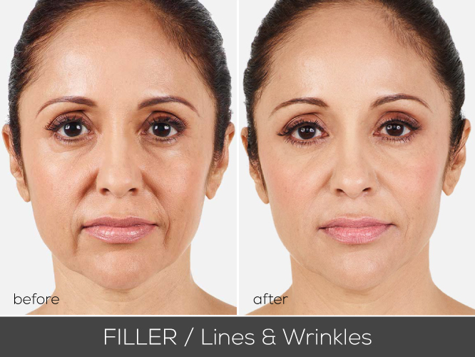 mirako_before_after_juvedermv2
