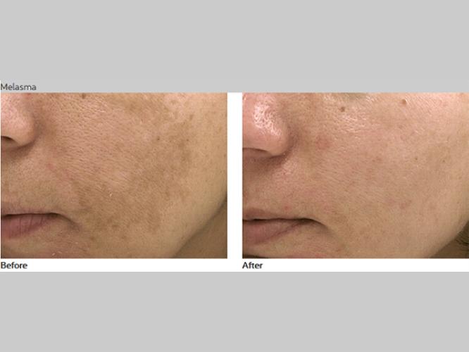 Skin-Care-Pastelle-Laser-Melasma-Pigmentation-Express-Envy-Laser-Genenesis-4