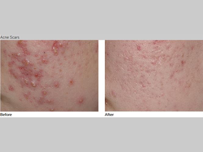 Skin-Care-Pastelle-Laser-Melasma-Pigmentation-Express-Envy-Laser-Genenesis-10