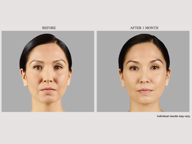 Juvederm-Voluma-XC-Filler-Model-3-1024x500