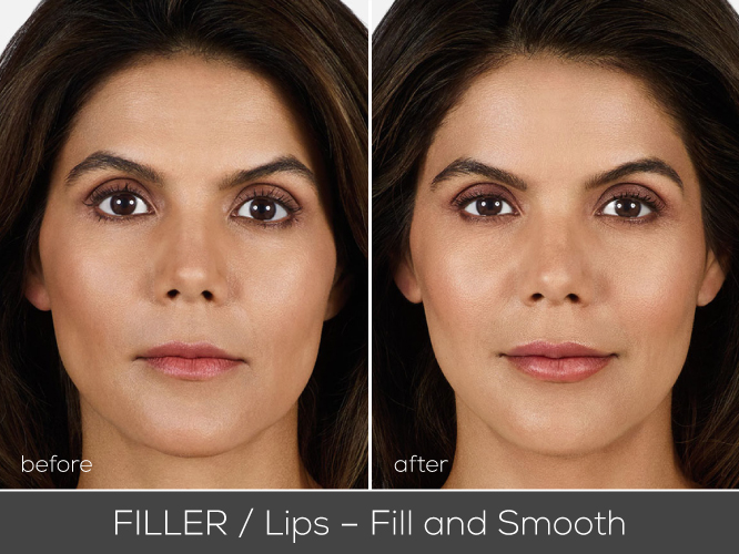 mirako_before_after_juvederm_Lips-Fill-and-Smoothv2