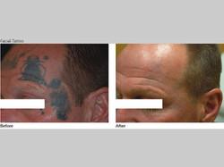 Skin-Care-Pastelle-Laser-Melasma-Pigmentation-Express-Envy-Laser-Genenesis-5