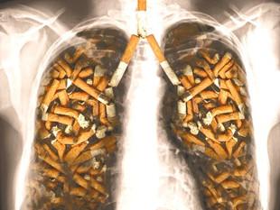 Les effets du tabac sur l'arbre respiratoire