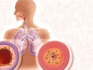 La BPCO et l'emphysème réduisent l'élasticité des poumons