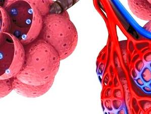 BPCO et emphysème pulmonaire, quels sont les liens ?