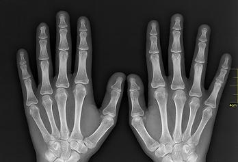 рентген руки.png