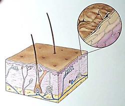 Epidermis Sketch