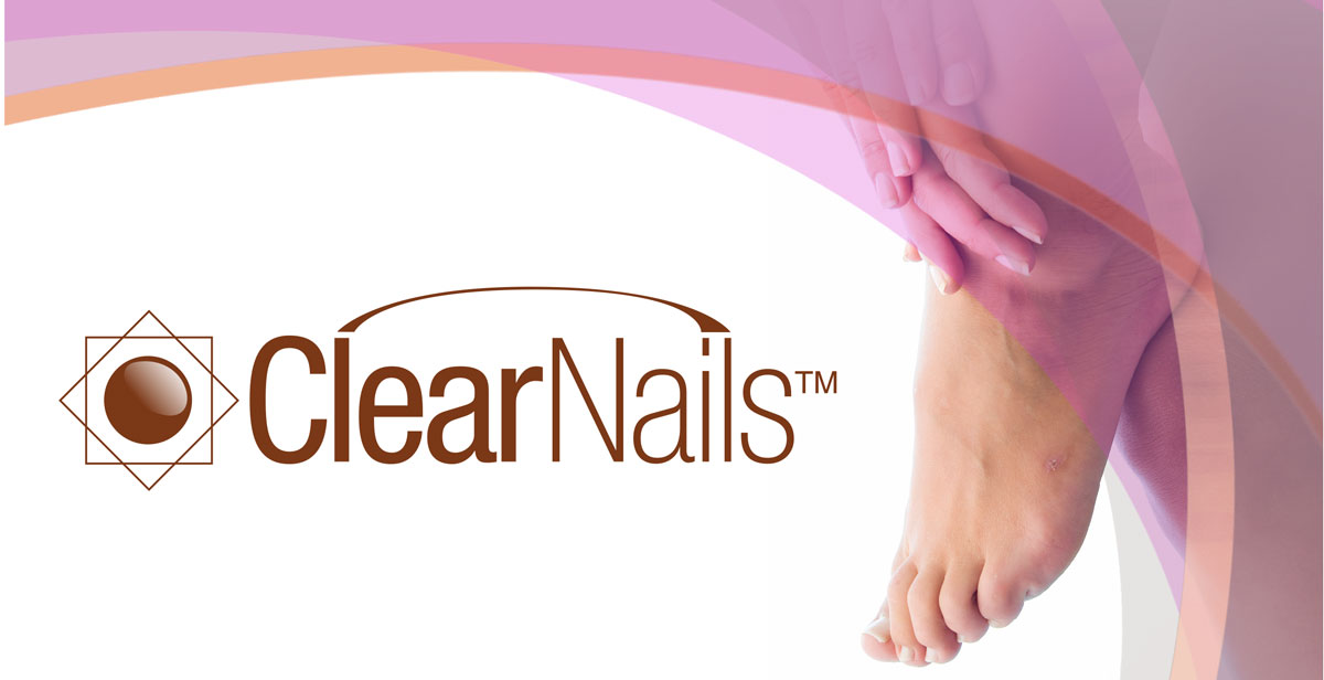 ClearNails-Video-Overlay
