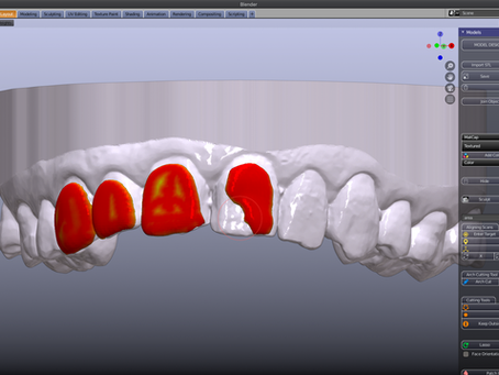 Free for Model Designer users!  Bleaching tray module.