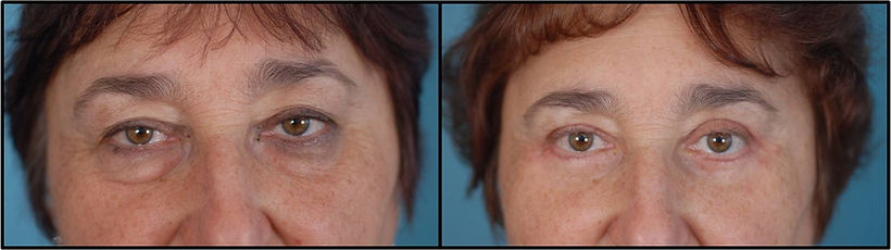 Before and after picture of a patient who underwent Blepharoplasty Surgery