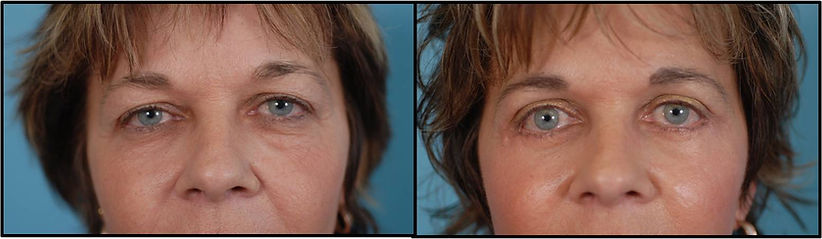 Before and after picture with Blepharoplasty surgery
