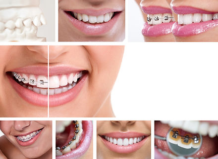 dental braces - lingual braces, before a