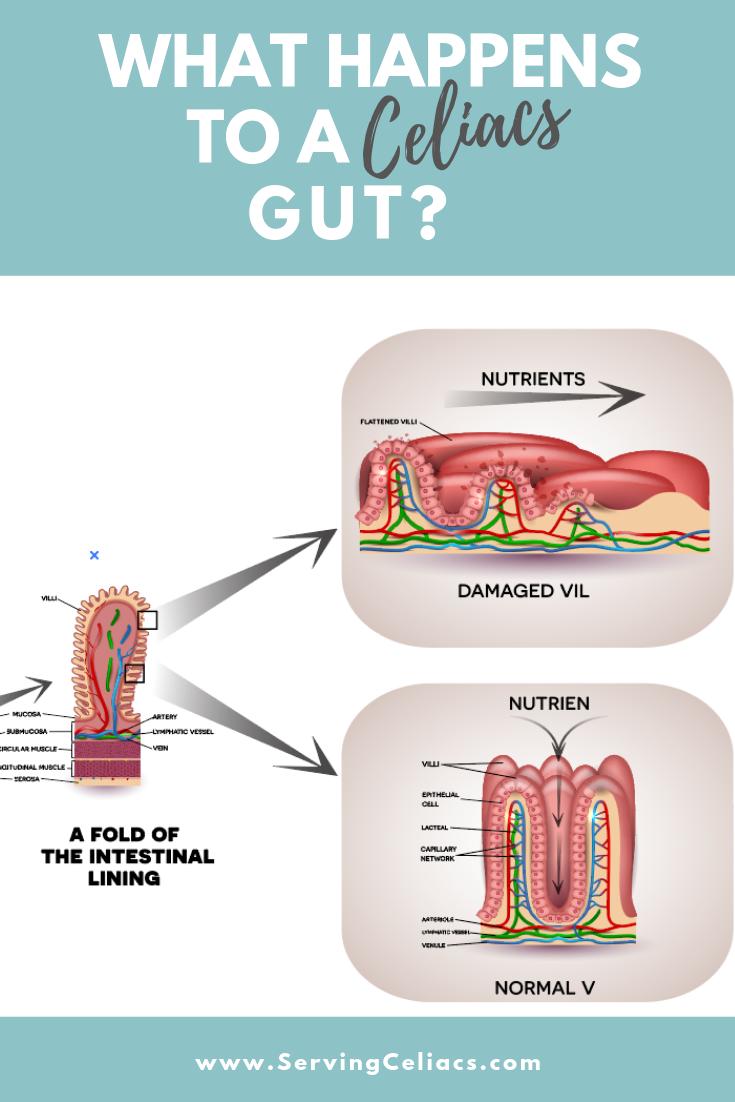 When a celiac has gluten