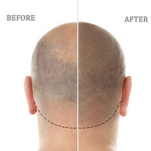 Man before and after hair loss MIropigment smp treatment on white background.jpg