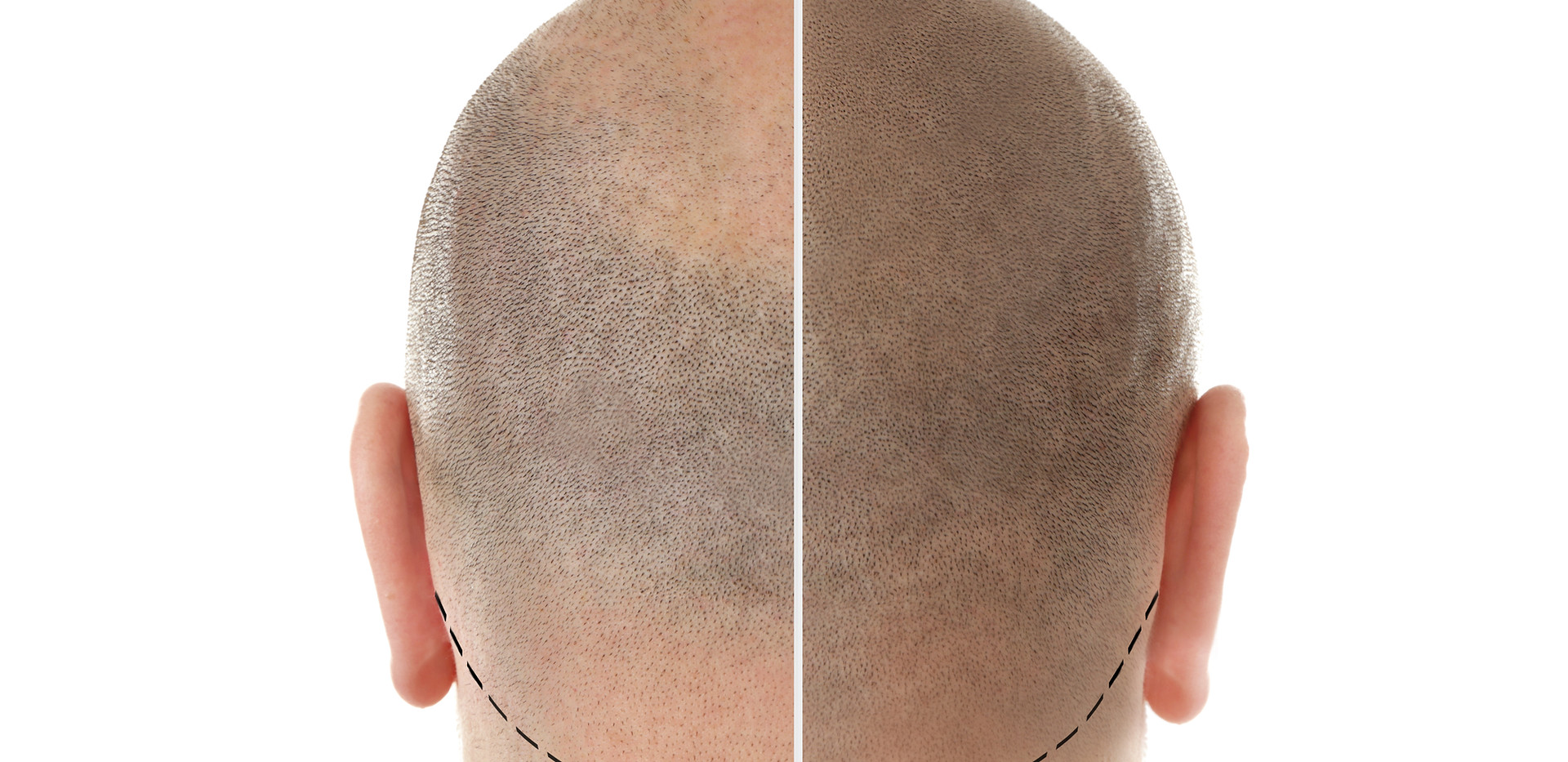 Man before and after hair loss treatment on white background.jpg
