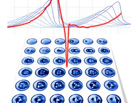 PNAS paper on breakthrough in acoustic droplet vaporization
