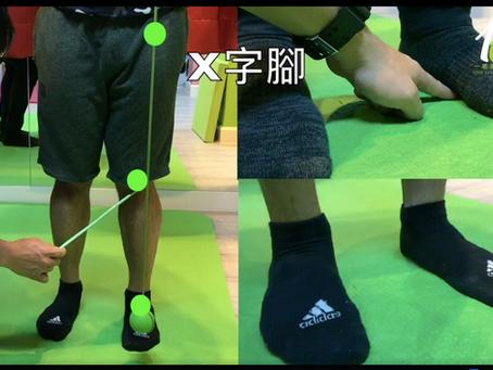 《都市ONE程:X型腳、扁平足改善方法》