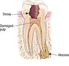Diagram of a tooth requiring endodontic (root canal) therapy.