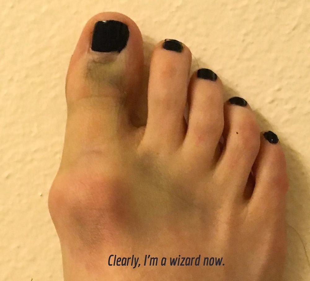 My broken? Toe