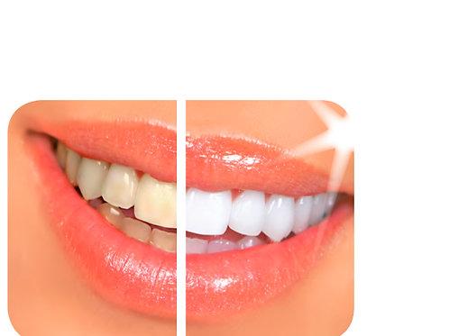 Davinci Laser Teeth whitening special